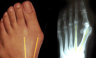 Bunions and OsteoarthritisXray Foot Bunion