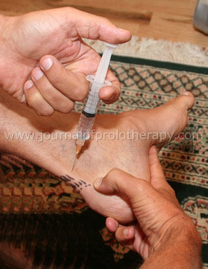 ankle_foot_treatment_fig_10[1]