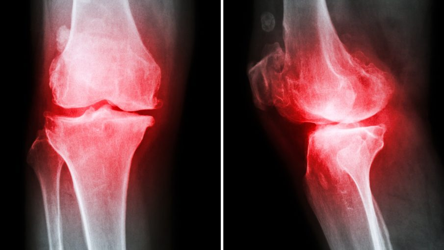 Stem Cells Knee
