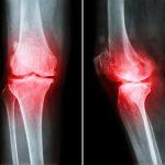 000-stemcells-knee